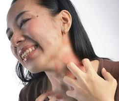 foto alergi